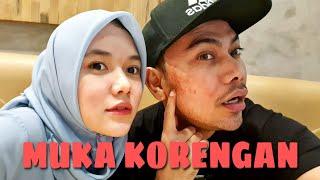 MUKA KORENG PERGI PANGKAS RAMBUT | FIKOH FOMAL