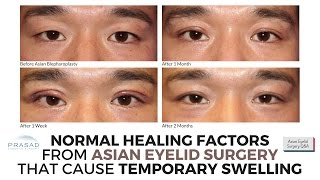 Normal Healing Factors of Asian Eyelid Surgery that Cause Temporary Swelling