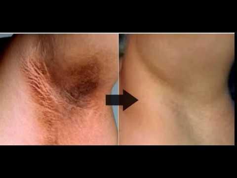 Пигментное пятно на грудине