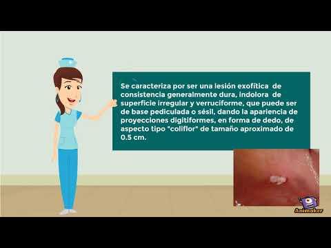 Nasal warts removal
