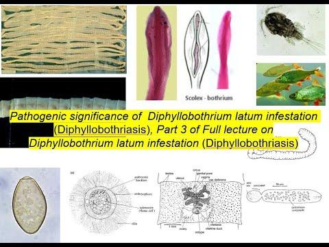 A paraziták okozzák az összes emberi betegséget