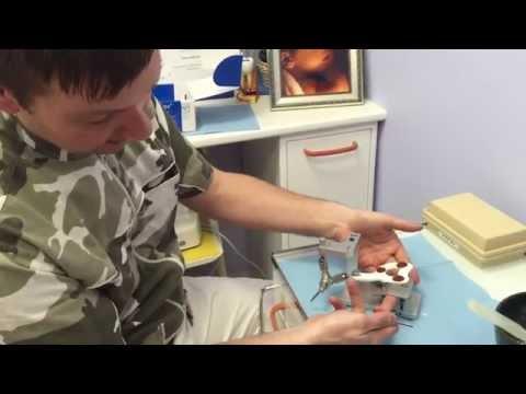 Trattamento delle malattie delle articolazioni e tendini