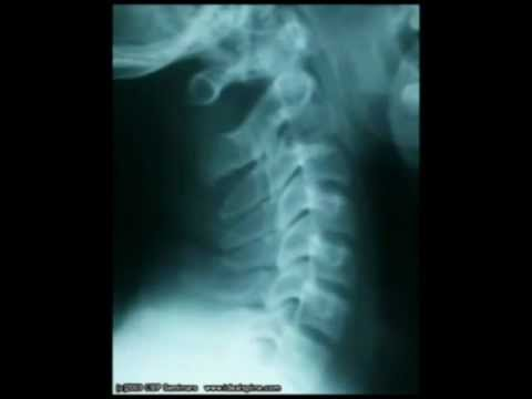 Tratamiento de sanatorio de articulaciones de la columna