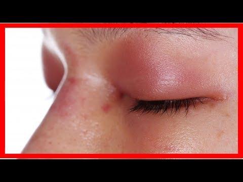 Video, wie Gelenke zu heilen