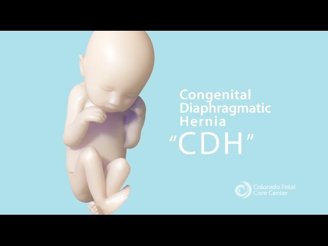 Pediatric Cdh Children S Hospital Colorado