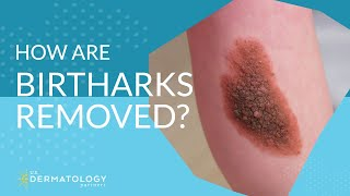 How Are Birthmarks Removed by Dermatologist?