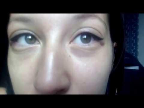 Отеки после перманентного макияжа ДЕНЬ 1. Permanent make-up swelling.