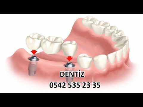 Diş implant fiyatları İzmir