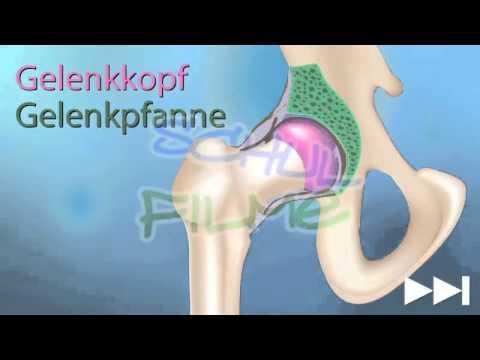 Zervikale Osteochondrose verursacht Symptome und Physiotherapie