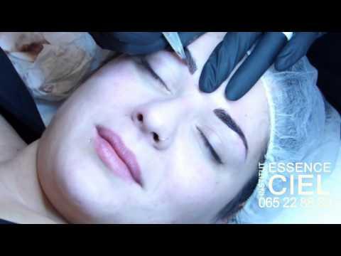 Les masques de la pigmentation sur la peau de la personne