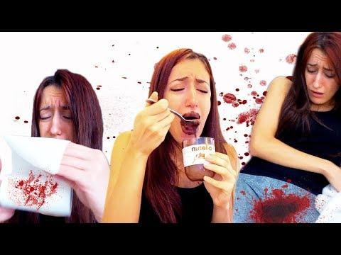Le ragazze siccome cura la psoriasi