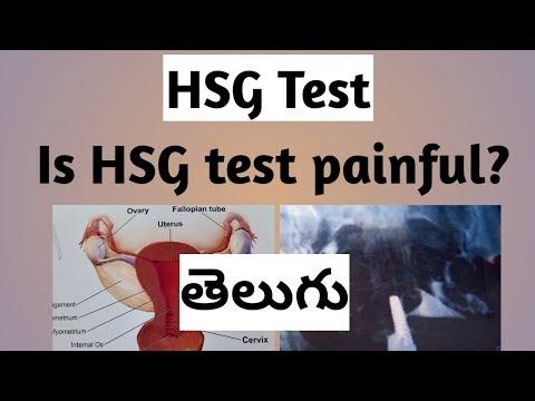 Telugu HSG Test Experience   Is HSG Test Painful?   HSG Test