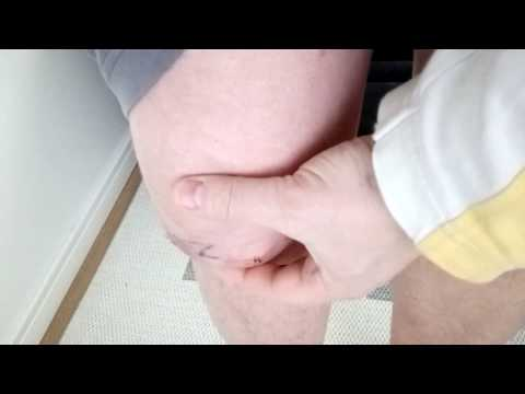 Операция на мениск коленного сустава