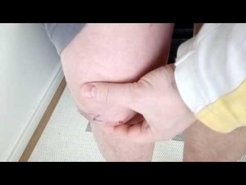 Связи и суставы позвонков