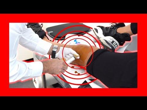 Leziuni ale ligamentului genunchiului cum se tratează