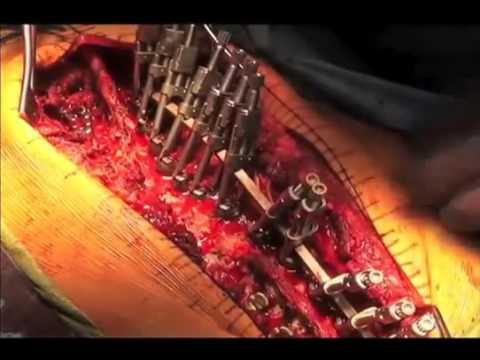 Curvatura di una spina dorsale di 11 anni