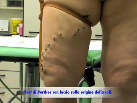 Varicosity su muscoli gastrocnemius