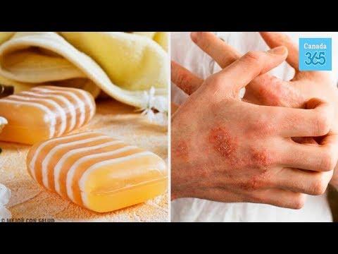 Tipi e cura di eczema