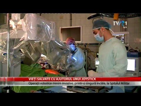 Mod de operare pentru a elimina prostata