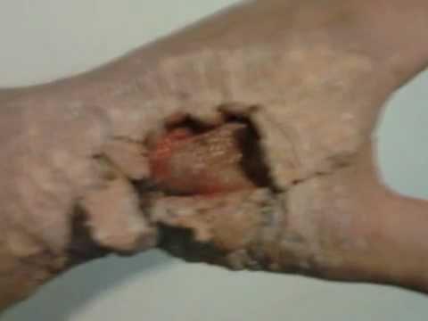 Pigmentazione dopo una lesione della pelle