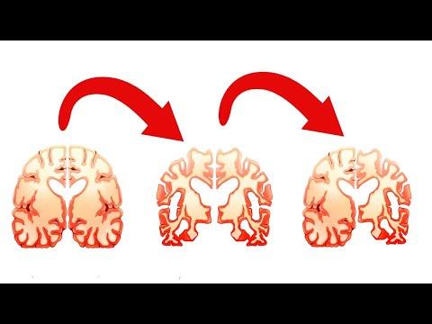 Dimexid pentru recenzii ale durerilor articulare
