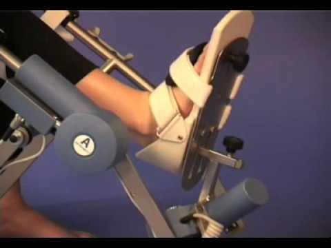 Bandscheibenvorfall Halswirbel Behandlung