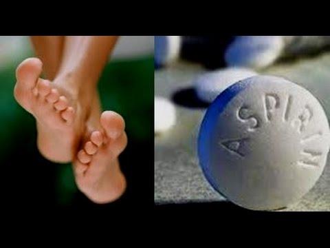 ASPİRİN MUCİZESİ•Topuk Çatlaklarına DOĞAL MASKE•Topuk Yumuşatıcı&Çatlaklarına Kesin Çözüm