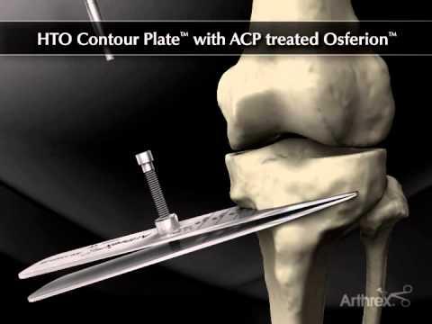 Articulația cotului doare ce să facă