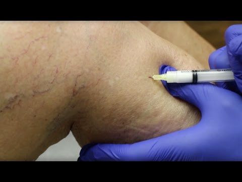 Tratamentul cu tratare a piciorului varicose