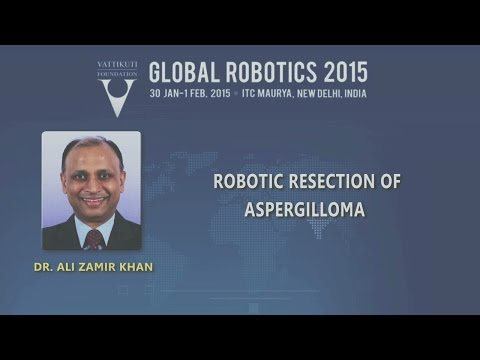 Robotic Recision of Aspergilloma