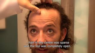 A detailed video about the entire procedure of hair transplantation in ACIBADEM