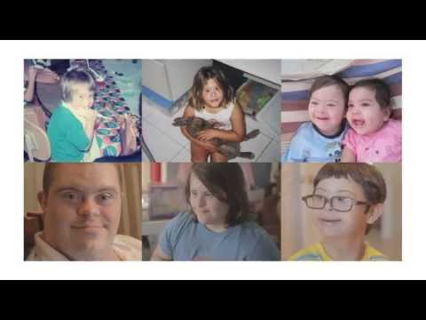 Watch video Down Syndrome: Changing Perspectives