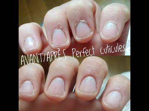 ☆ Soin cuticules AVANT/APRES