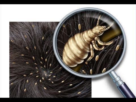 Video How to Get Rid of Head Lice Fast