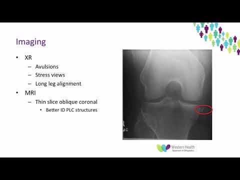 Artroza tratament 2 grade
