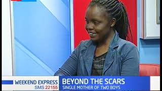 Beyond the scars: Victim of sexual assault speaks out