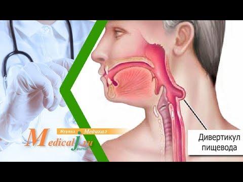 Дивертикулы пищевода. Причины, симптомы, лечение дивертикулеза