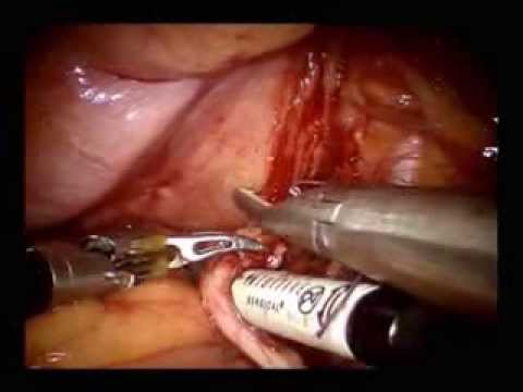 Robot-assisted Radical Cystectomy: Description of an Evolved Approach to Radical Cystectomy