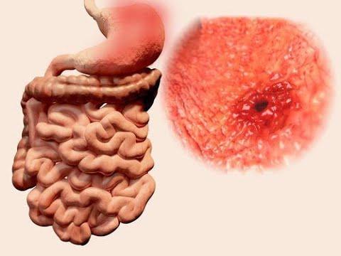 Blut auf Hormone, wenn erhöhter Blutzucker