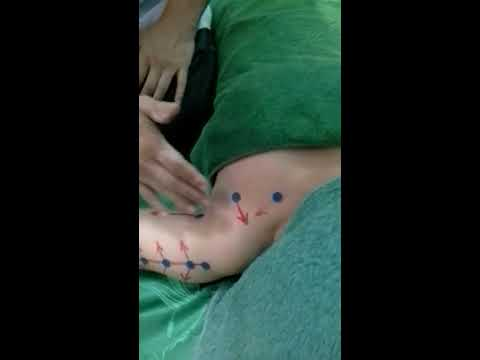 วิธีการกระชับหน้าอกหย่อนคล้อยโดยไม่ต้องผ่าตัด