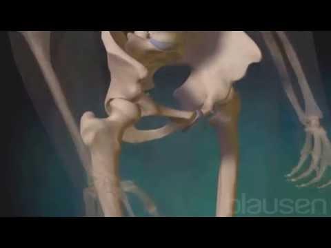 Articulaciones inflamadas terneros