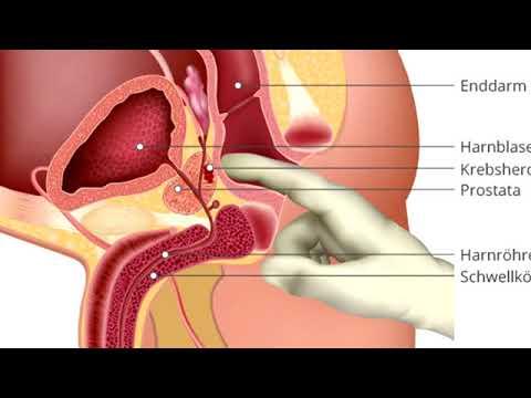 Schmerzen in dem Prostata-Anhängsel