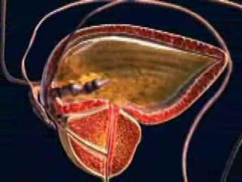 Globuli bianchi nel prostata è un succo batteri