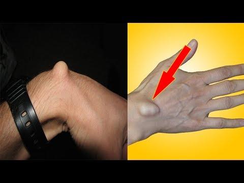 Empfindlichkeit Verletzung der Osteochondrose