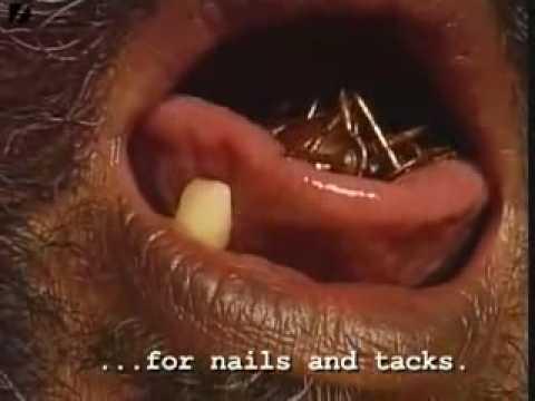 Interinguinal gribok als zu behandeln