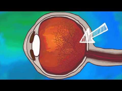 Лазерная коагуляция сетчатки глаза при тромбозе