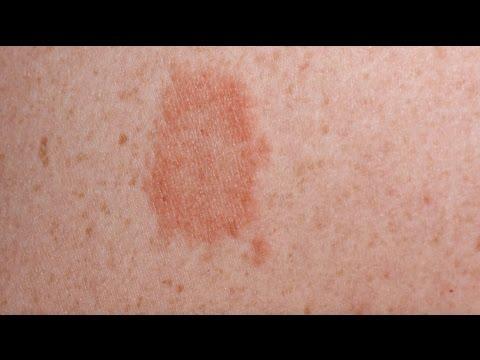 Les onguents de la graisse de blaireau du psoriasis
