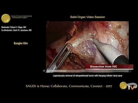 Cancer of uterine symptoms