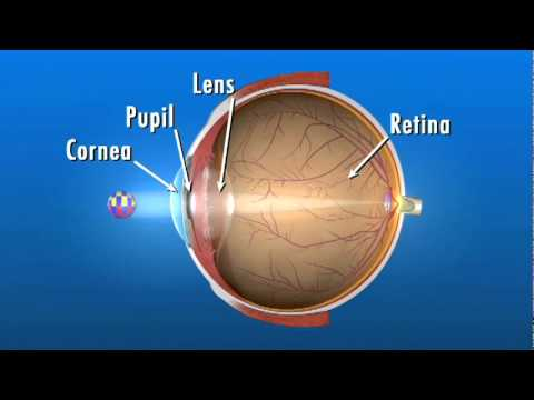 What Is Retinitis Pigmentosa Eye M D Approved