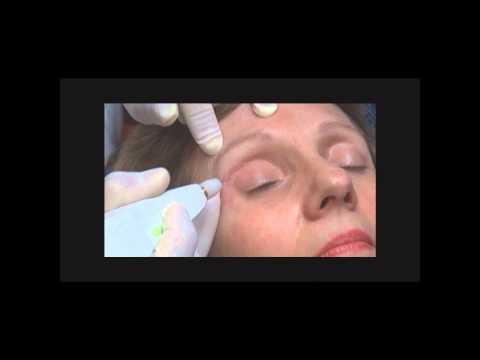 Laser lopération à vue de nez à almaty